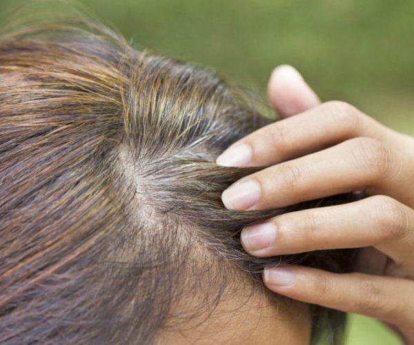 Gjyshet thonë që është dorë me një/ Lajini flokët me aspirinë dhe do habiteni kur të shihni sa të bukur do t'ju bëhen